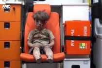 wounded-syrian-boy-in-aleppo