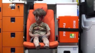 Wounded Syrian boy in Aleppo