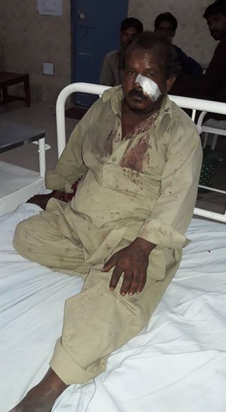 A victim of the beating in hospital