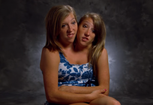 Conjoined twins Abby and Brittany Hensel are loving their new job