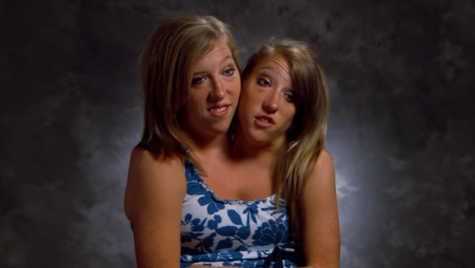 conjoined-twins-abby-and-brittany-hensel-are-loving-their-new-job