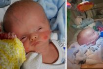 Baby with swollen head that doctors suggested be terminated is defying expectations